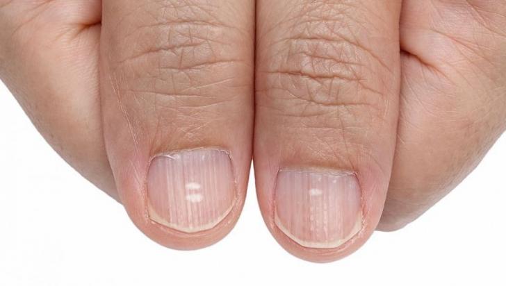 pete albe pe unghiile pierdere în greutate)