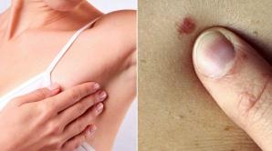 Simptomul care arată clar că ai cancer la sân şi pe care toate femeile îl ignoră