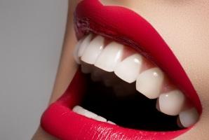 Alimentele care curăță dinții și îi albesc