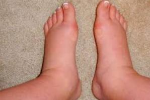 Cum să scapi definitiv de picioarele umflate şi dureroase