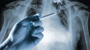 SEMNUL care anunţă cancerul pulmonar
