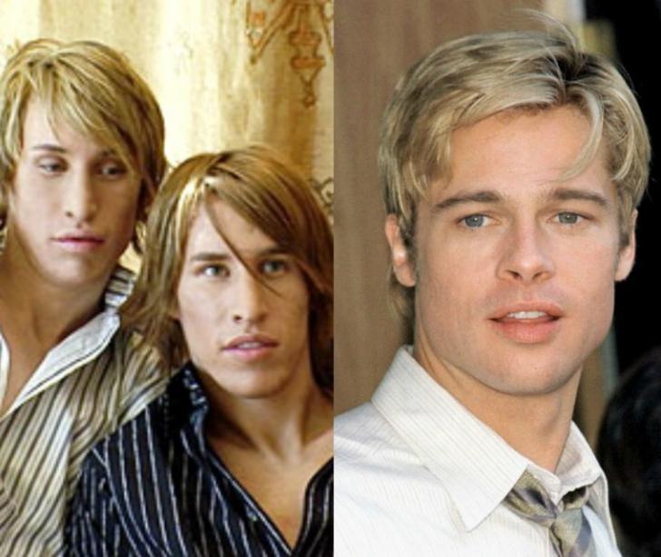 Gemenii care au cheltuit 20.000 de dolari pe operaţii estetice ca să arate ca Brad Pitt