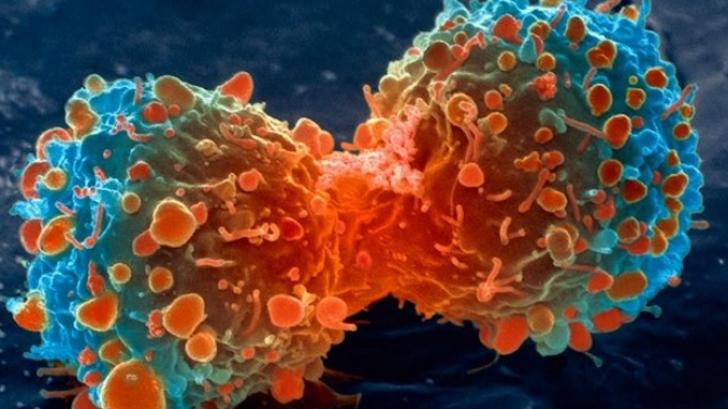 Un nou caz de infectare cu tulpina britanică SARS-CoV-2, descoperit la Suceava