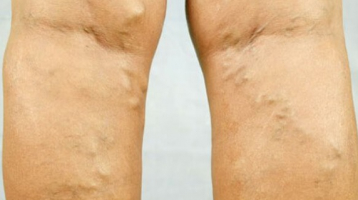 Arată imagini cu varice pe picioare
