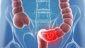 Semnele cancerului de colon pe care NU trebuie să le ignori