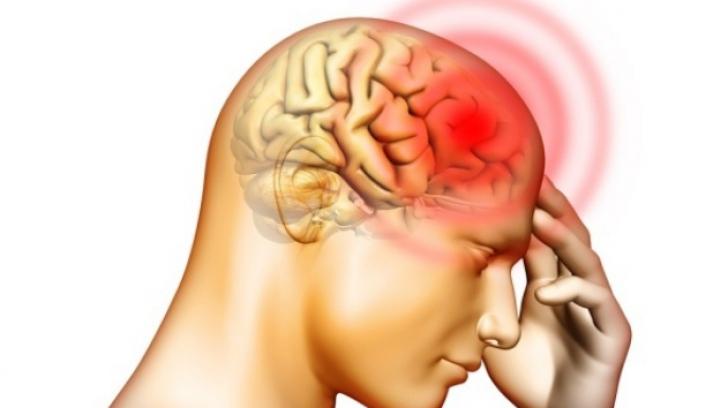 Semne trecătoare care pot anunţa un accident vascular cerebral