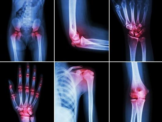 Tratamentul cu Chaga pentru artroză)
