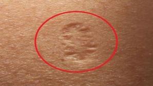 Ai și tu acest semn pe braţ? Uite care este adevărata lui semnificaţie