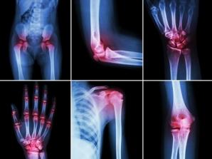 Amestecul care face minuni în artroză, artrită şi coxartroză