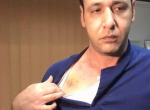 Medic batut in spital
