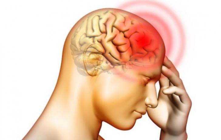 Persoanele care au migrene, de 8 ori mai predispuse la infarct. Concluziile alarmante ale medicilor