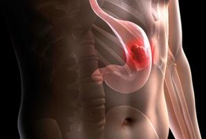 Lista alimentelor care îţi pot cauza cancer la stomac. Renunţă la ele acum!