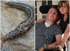 Un tânăr care a mâncat un limax pentru a-și impresiona prietenii a rămas paralizat