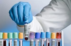 Analizele pentru depistarea hepatitei B şi C vor fi gratuite, de la 1 aprilie