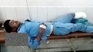 Inuman! Un bărbat, victima unui accident înfiorător, obligat să-şi foloseasă piciorul tăiat ca PERNĂ