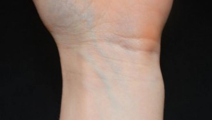 ameliorează durerea varicelor ce înseamnă venele albastre și violete