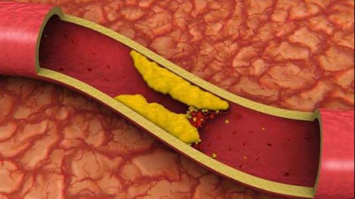 Colesterolul îți distruge atât inima, cât și creierul. Află cum îl poți ține sub control