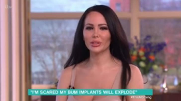 """Nu poate sta pe scaun din cauza implanturilor din fese. """"Mi-e frică să nu explodeze!"""""""