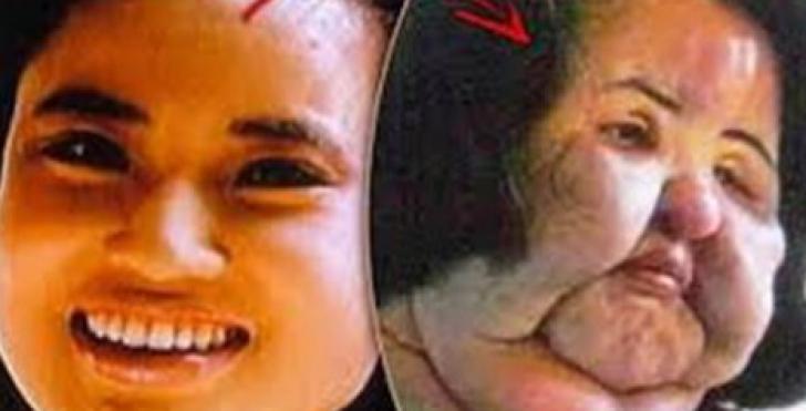 Timp de 20 de ani, şi-a injectat ulei pentru gătit în faţă. De ce căuta femeia frumuseţea eternă
