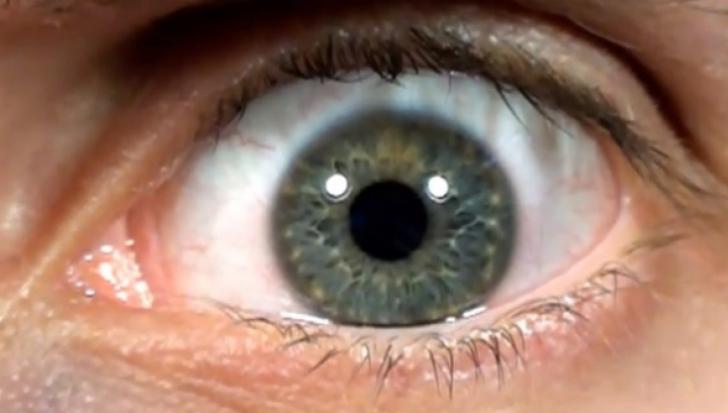 Ţi se zbate ochiul? Este un motiv real de îngrijorare. Simptomele care trebuie să te pună în alertă