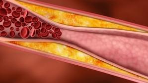 Semne silenţioase care îţi spun că ai arterele înfundate şi că rişti afecţiuni grave