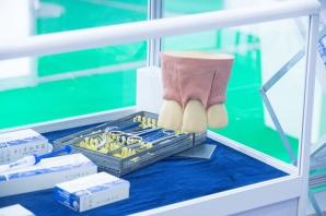 DENTA, evenimentul noutăților în medicina dentară