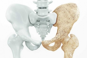 10 semne că vei face osteoporoză