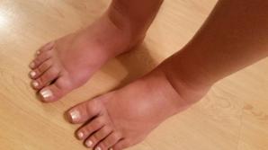 Cele mai eficiente remedii pentru picioarele umflate