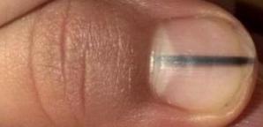 Semnul de pe unghie care anunţă cancerul. Dacă îl vezi, mergi urgent la medic!