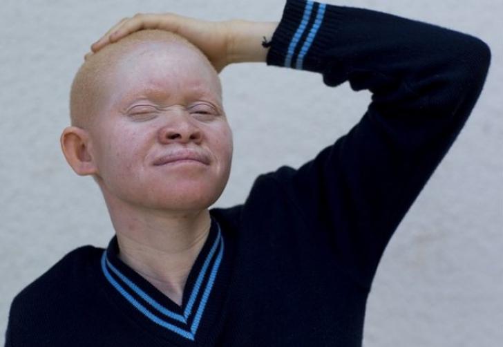 Drama copiilor albinoși din Tanzania. Un fotograf dezvăluie lucruri șocante