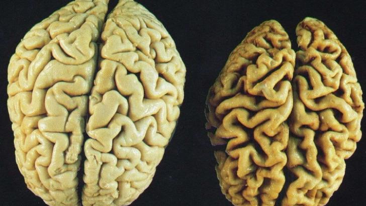 """Un simplu """"transplant"""" de materii fecale ar putea rezolva probleme degenerative ale... creierului"""