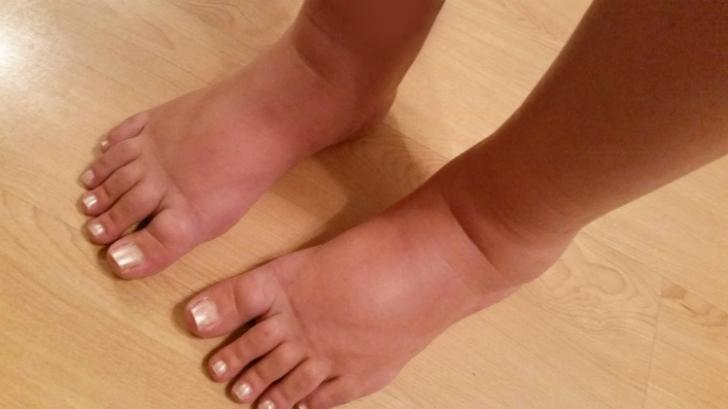 ce să faci picioarele și picioarele umflate