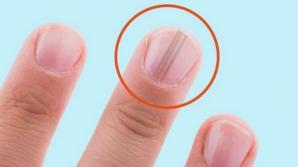 Acest cancer ascuns poate trece neobservat luni de zile! Primele semne apar pe unghii