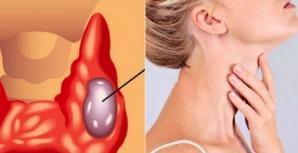 Cea mai bună gustare pentru tiroidă: un endocrinolog îţi spune ce să mănânci zilnic