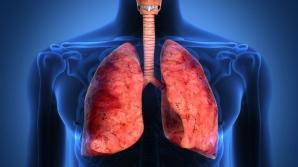 Al doilea transplant pulmonar