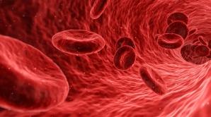 sporturi anticolesterol