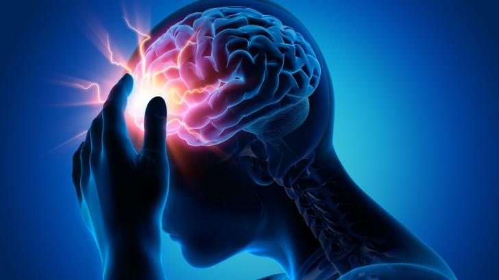 Accidentul vascular cerebral: cum îl poţi detecta rapid. Aşa poţi salva viaţa cuiva