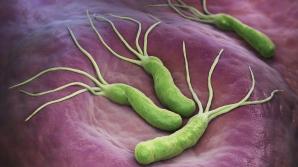 Această bacterie cauzează cancer de stomac. Cum te poţi feri de ea