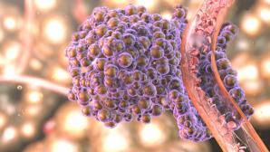 Alimentul care răspândește cancerul în tot corpul. Îl ai sigur în casă. Renunță la el cât mai rapid