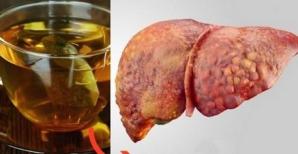 Avertismentul medicilor: acest ceai te poate îmbolnăvi de hepatită!