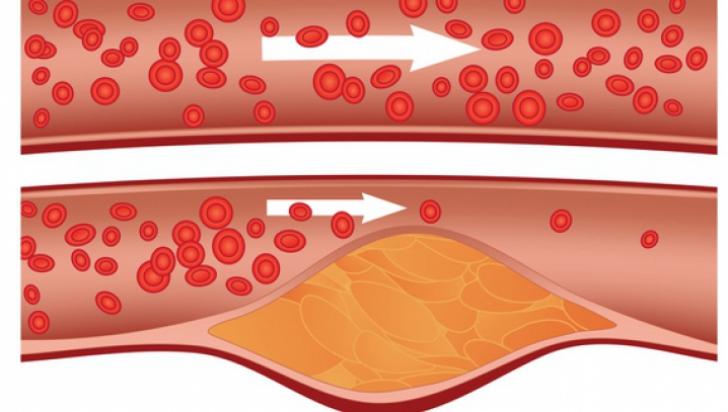 Cum puteți să preveniți înfundarea vaselor de sânge