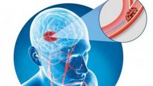 5 semne care îţi spun că faci accident vascular cerebral