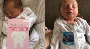 Povestea uluitoare a fetiţei care s-a născut cu un dinte. Ce a păţit după 12 zile