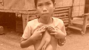 """Povestea înfiorătoare a copilei care trăieşte cu două mâini """"lipite"""" pe corp"""