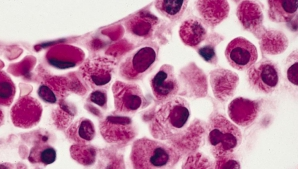 Semne de alarmă care anunță leucemia. Mare atenţie la aceste simptome!