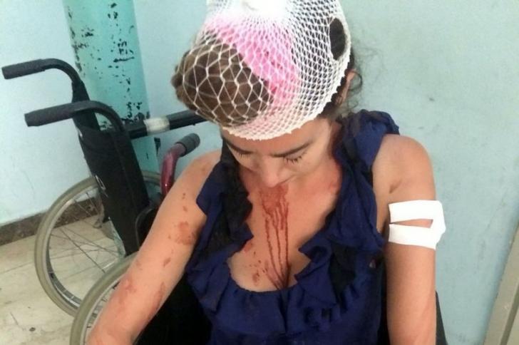 A fost bătută până la sânge pentru că a refuzat să plătească bani în plus la cazare