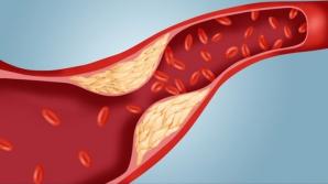 Adevărul despre colesterol pe care nimeni nu îl spune. Sigur nu ştiai aceste lucruri