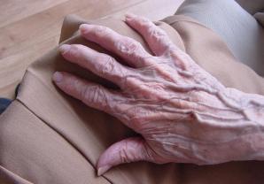 Cele mai bune tratamente pentru mâini bolnave