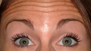 Ridurile de pe frunte pot trăda un risc ridicat al unei afecţiuni grave. Părerea cercetătorilor