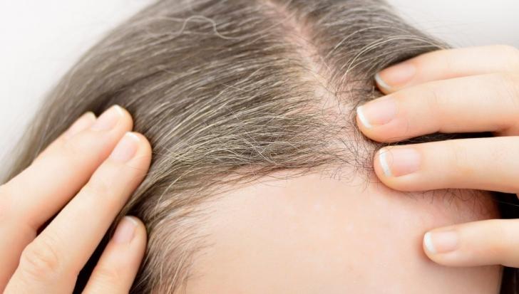 De ce albeşte părul oamenilor? Putem stopa acest lucru? Ce spun oamenii de ştiinţă